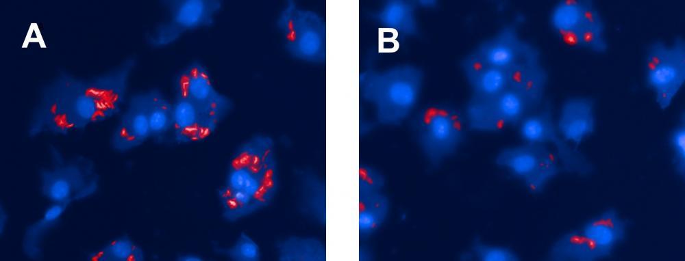 L'activité antibactérienne intrinsèque des nanoparticules fabriquées à partir de β-cyclodextrines potentialise leur effet dans la lutte contre la tuberculose